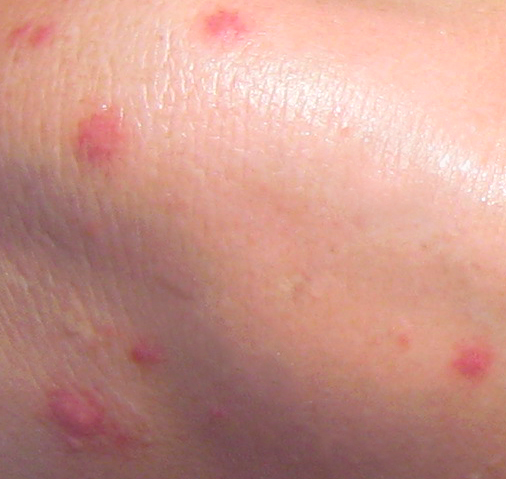 How Do I Tell If It's The Chicken Pox Or Bug Bites? - Blurtit